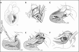 Schematic illustration