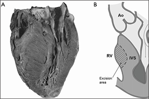 View of heart